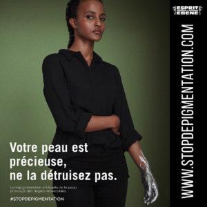 Dépigmentation: une association lance une campagne de sensibilisation en France